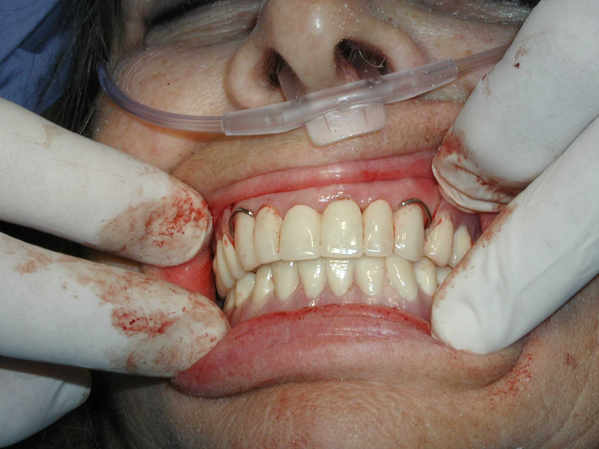 Top Partial Dentures Images for Pinterest Tattoos