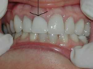Picture Of Flipper Tooth 8 Dr Caputo Palm Harbor Dentist