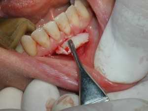 P1010421 300x225 What is a free gingival tissue graft?