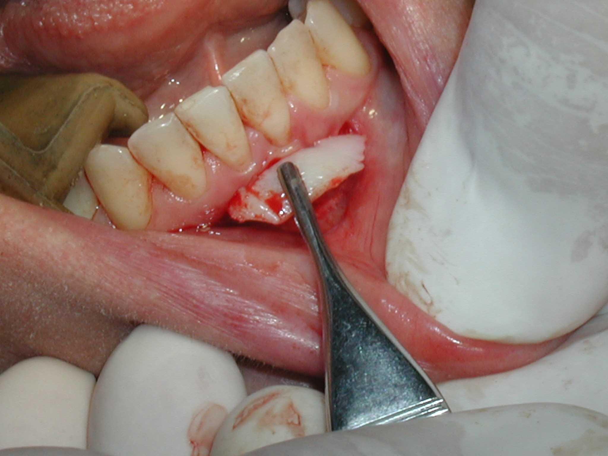 Gum Graft Cost Gum Tissue Graft Cost