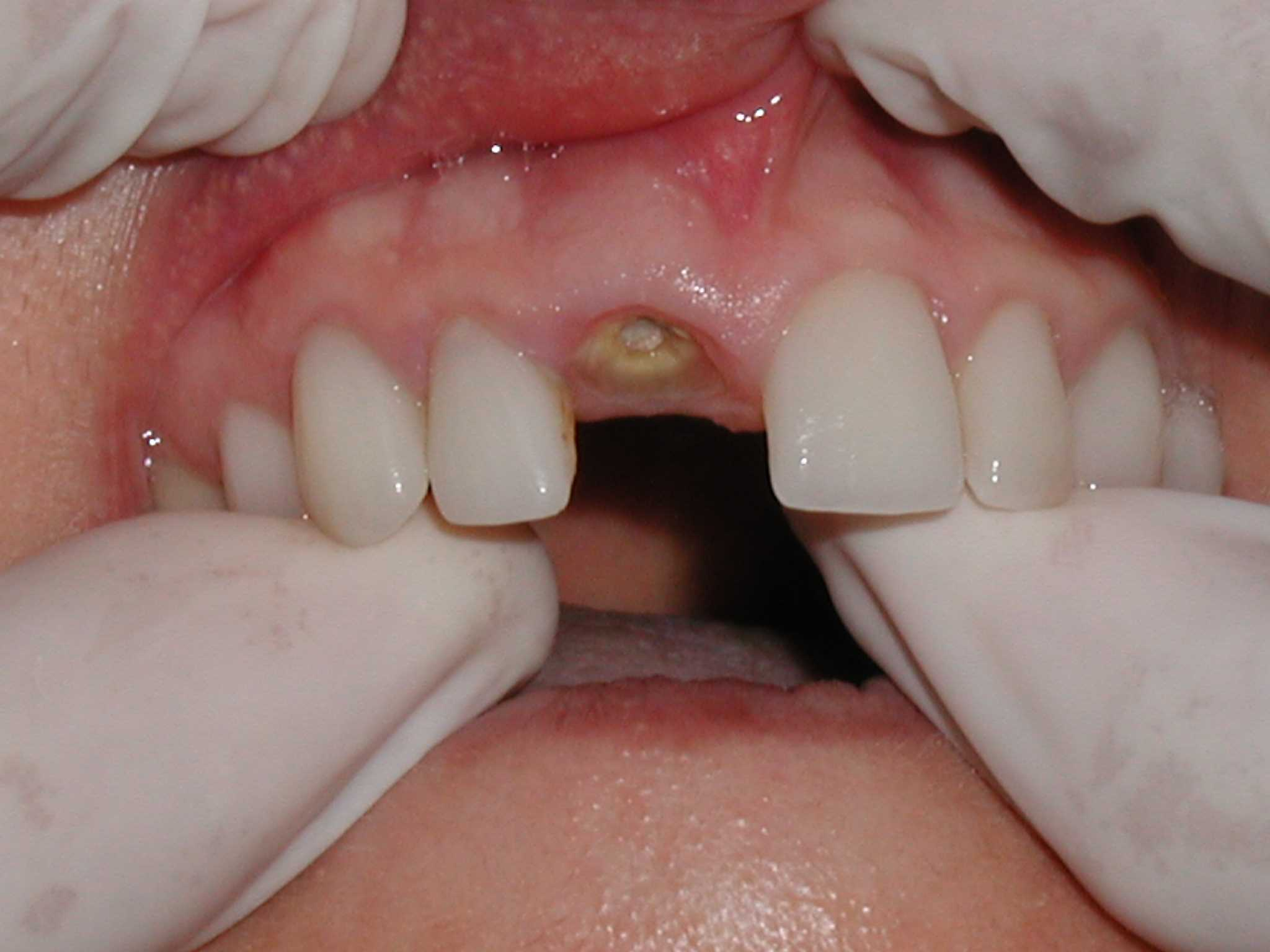 Gallery for what does dry socket look like after tooth extraction