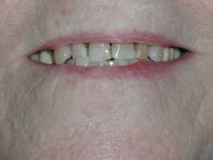 After 300x225 Cosmetic Dentistry on a budget (after).