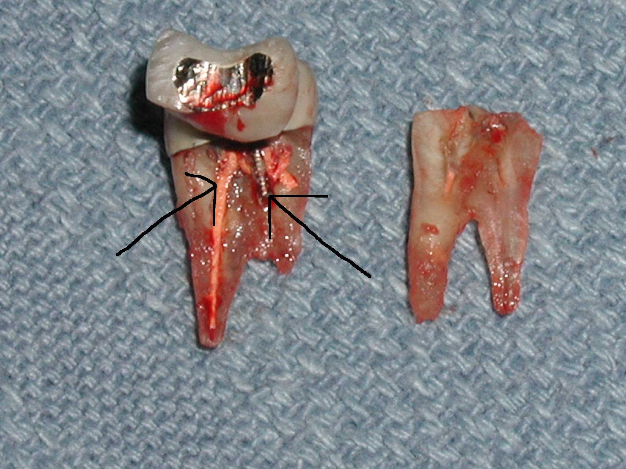 Root Canal Tooth Why Do Root Canals Fail Dr Caputo Palm Harbor Dentist