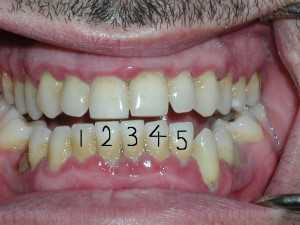 Extra Tooth 300x225 Periodontal Disease and an extra tooth!