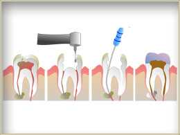 slide rc1 2 Root Canals