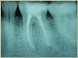 slide rc1 3 Root Canals