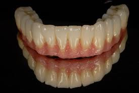 CAD - CAM Denture